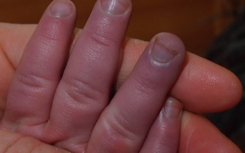 Blue Fingernail Beds Baby